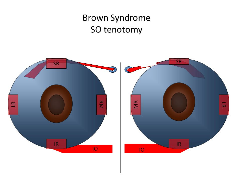 Brown Syndrome SO tenotomy