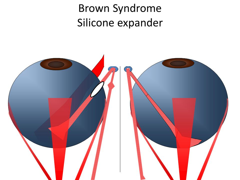 Brown Syndrome Silicone expander