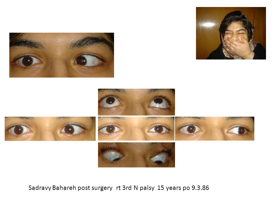 Sadravy Bahareh post surgery rt 3rd N palsy 15 years po 9.3.86