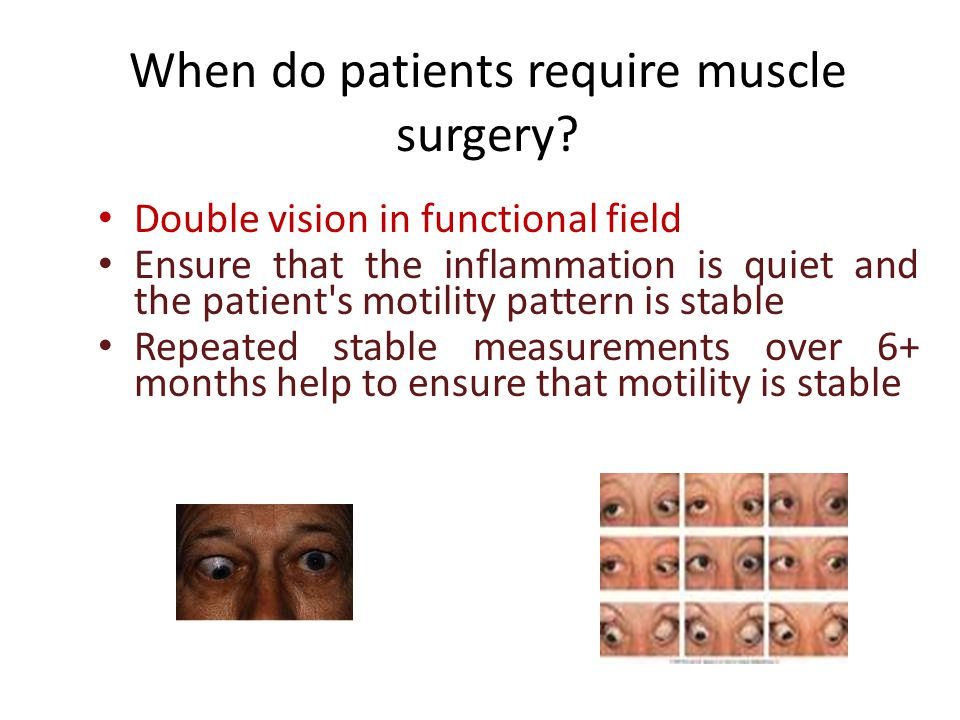When do patients require muscle surgery
