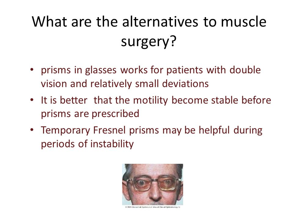 What are the alternatives to muscle surgery