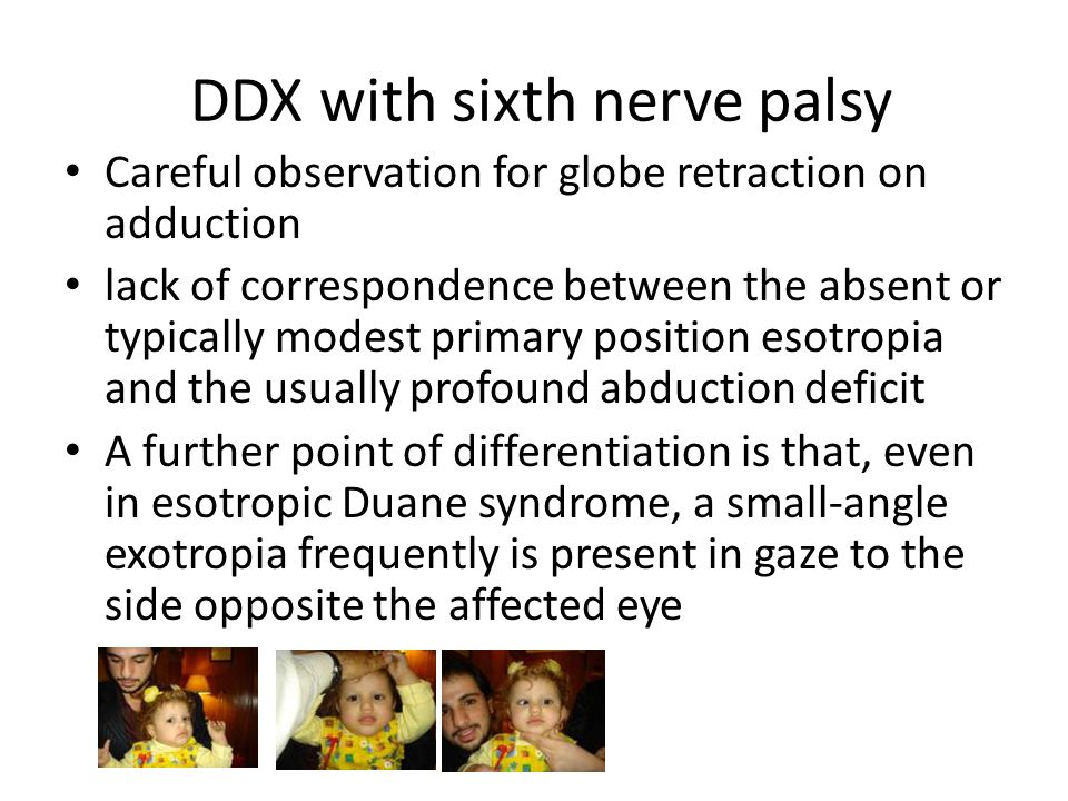 DDX with sixth nerve palsy