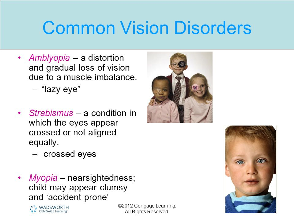Common Vision Disorders