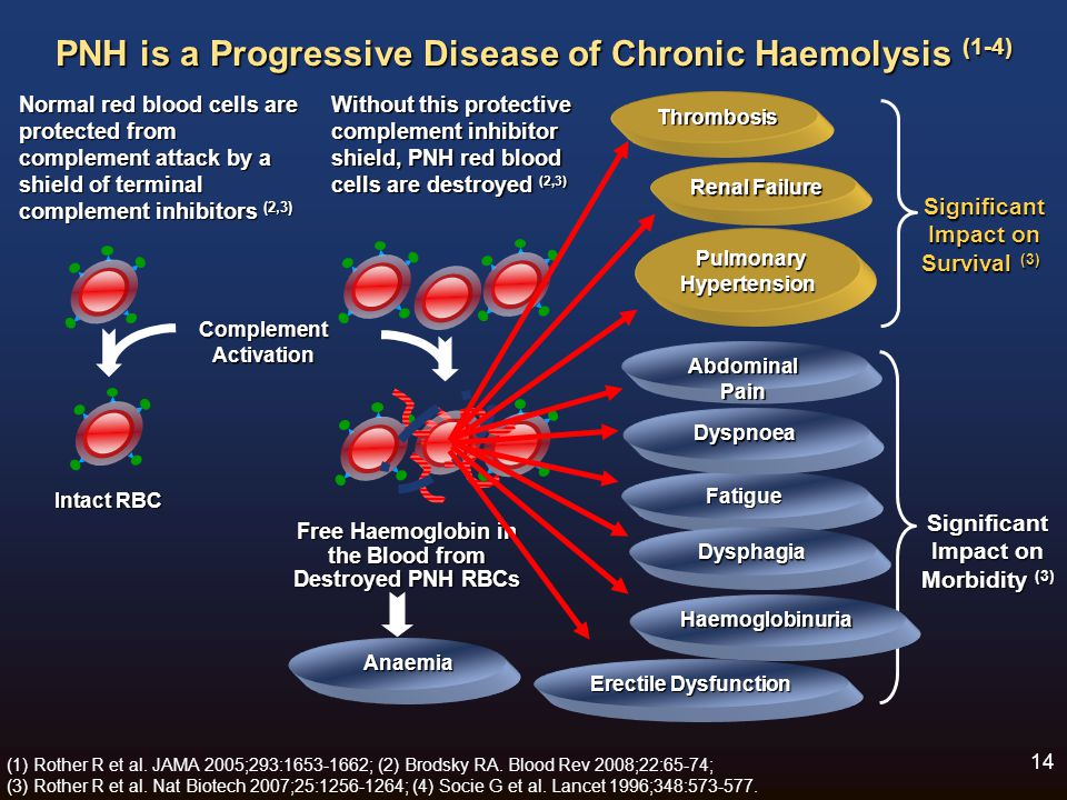 PNH is a Progressive Disease of Chronic Haemolysis (1-4)