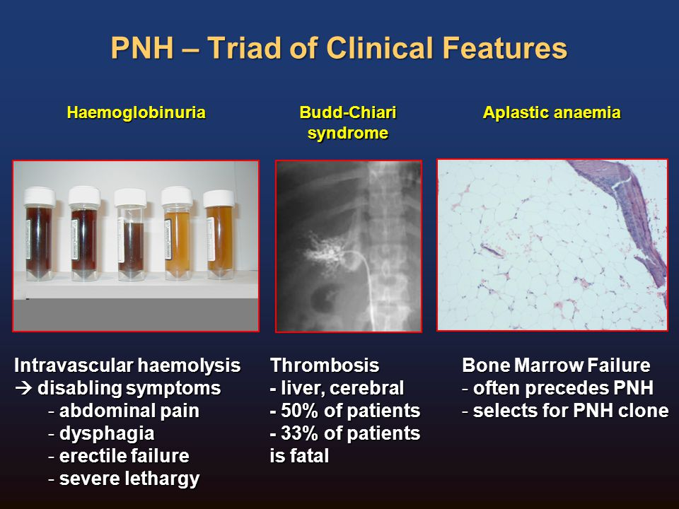 PNH – Triad of Clinical Features