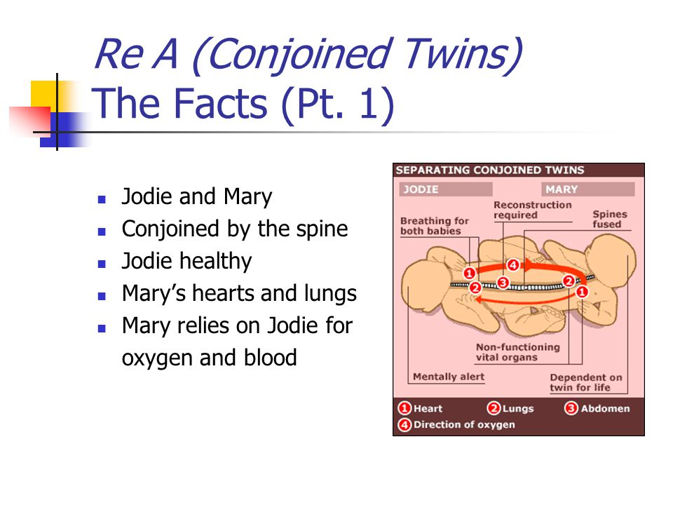 Rough Outline Conjoined Twins Case Study Solution and ...