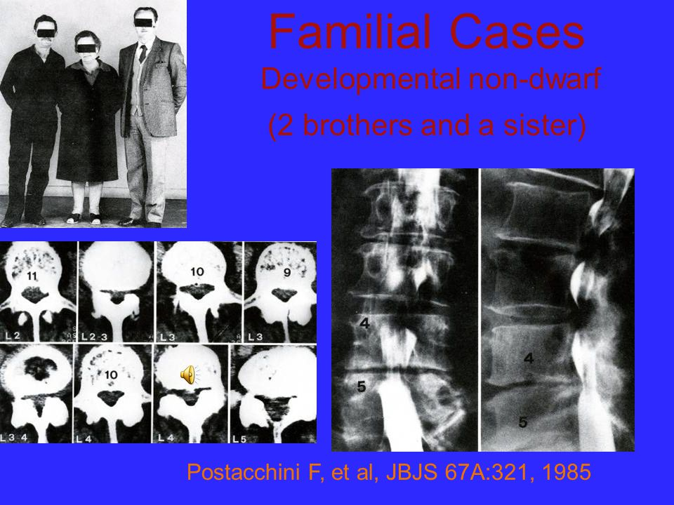 Familial Cases Developmental non-dwarf (2 brothers and a sister)