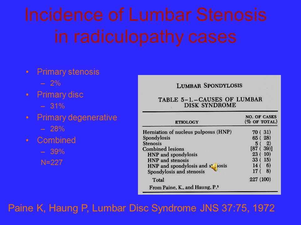 Incidence of Lumbar Stenosis in radiculopathy cases