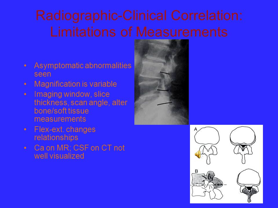 Radiographic-Clinical Correlation: Limitations of Measurements