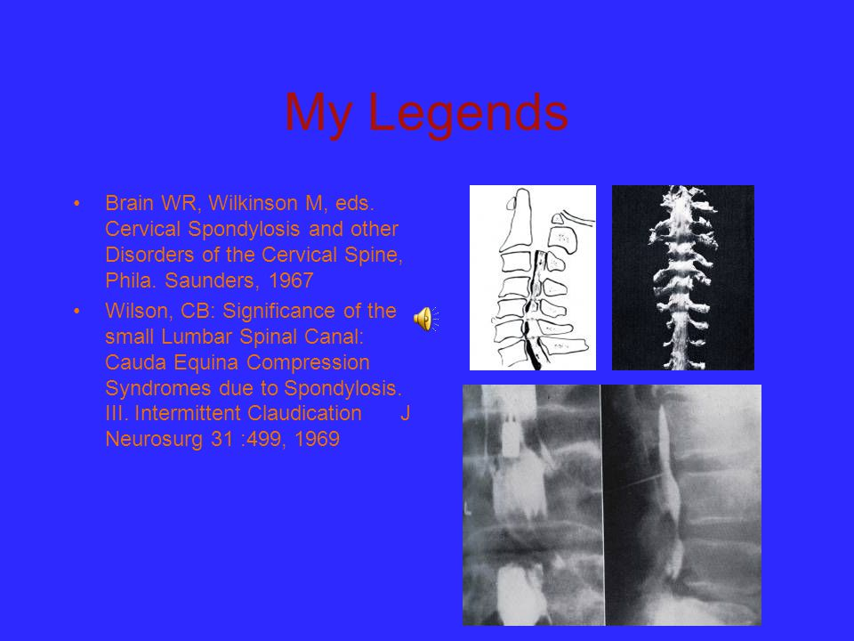 My Legends Brain WR, Wilkinson M, eds. Cervical Spondylosis and other Disorders of the Cervical Spine, Phila. Saunders, 1967.