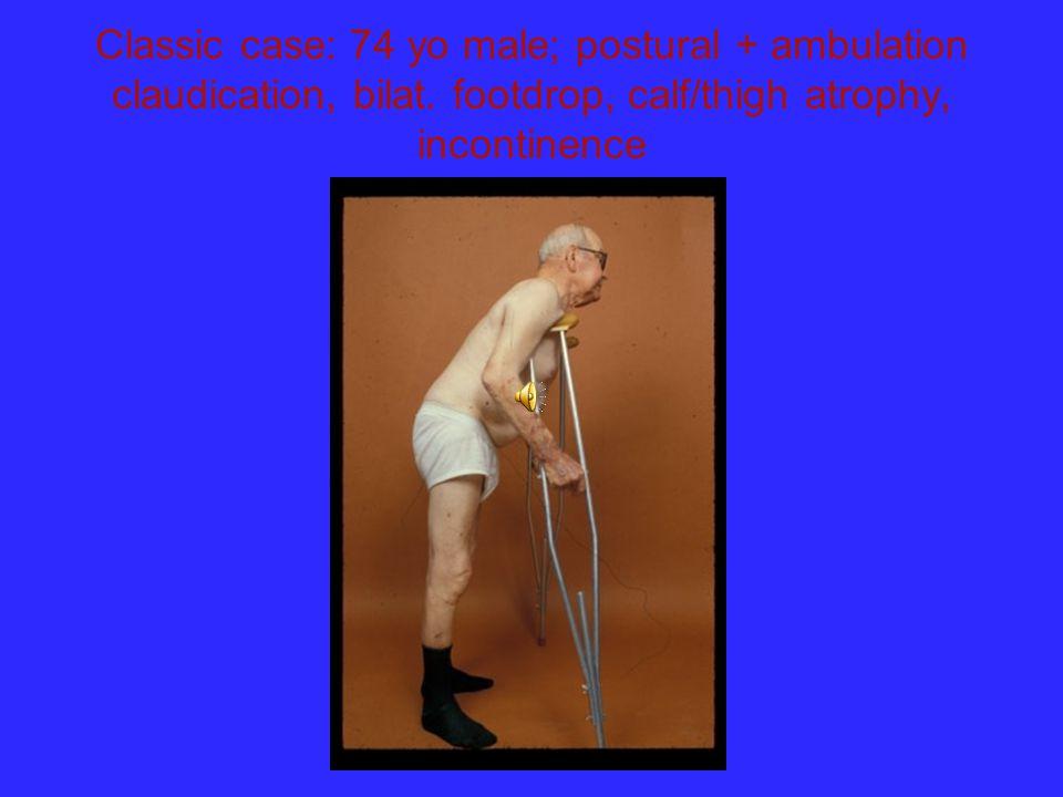 Classic case: 74 yo male; postural + ambulation claudication, bilat