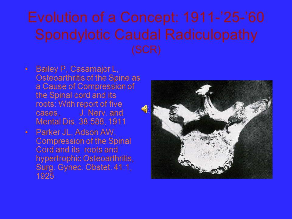 Evolution of a Concept: 1911-'25-'60 Spondylotic Caudal Radiculopathy (SCR)
