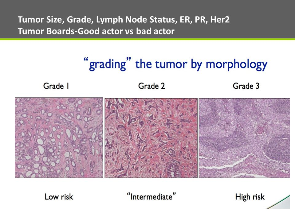 Tumor Size, Grade, Lymph Node Status, ER, PR, Her2 Tumor Boards-Good actor vs bad actor
