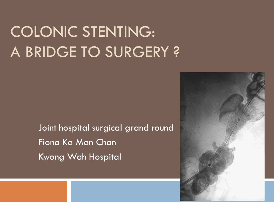 Colonic stenting: a bridge to surgery