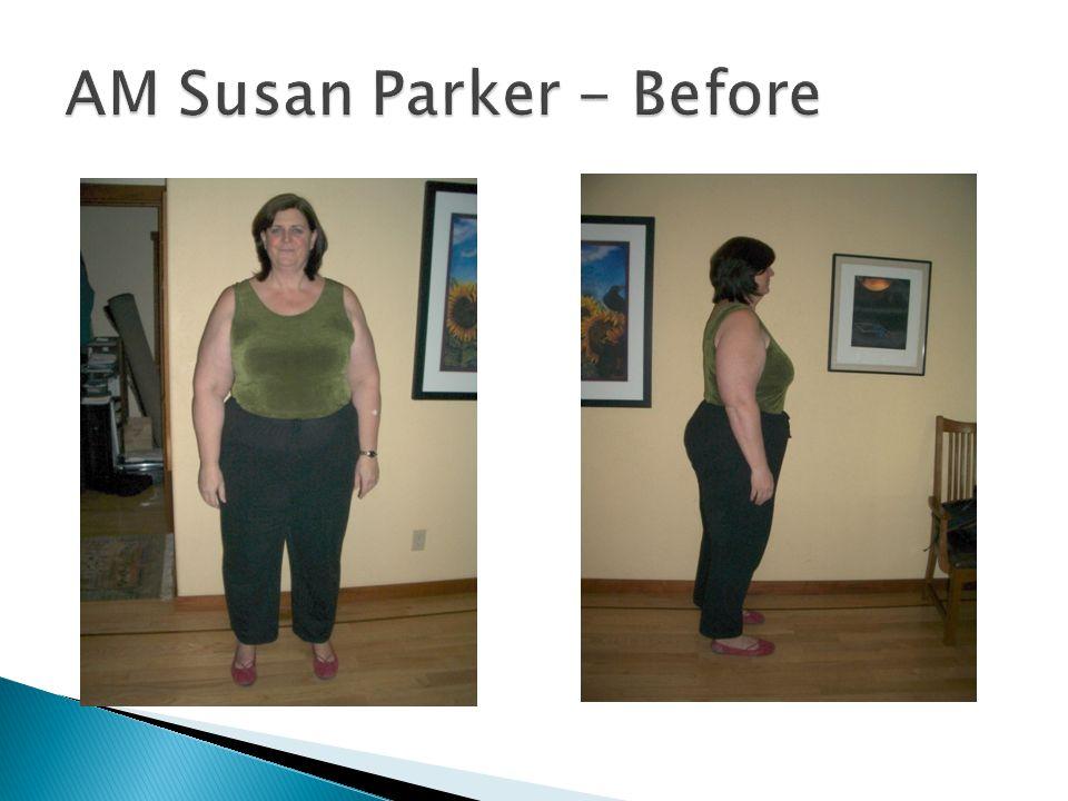 AM Susan Parker - Before