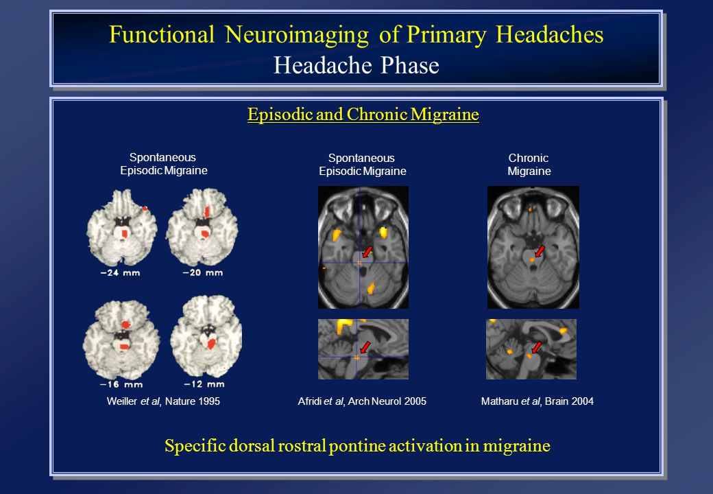 Functional Neuroimaging of Primary Headaches Headache Phase