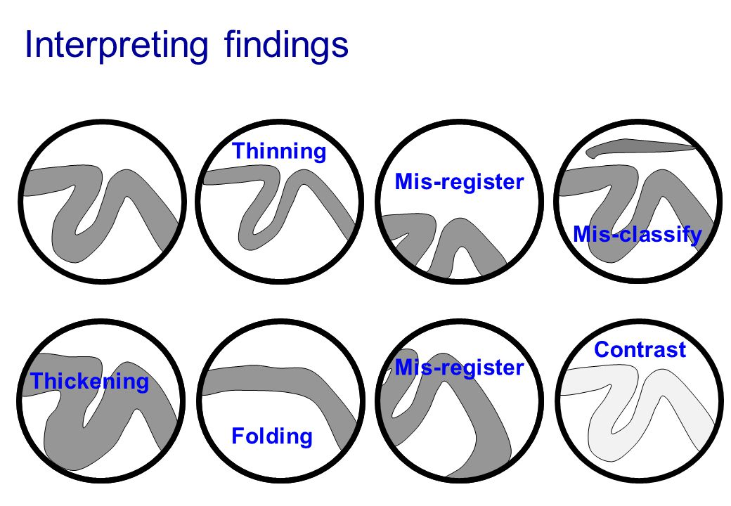 Interpreting findings