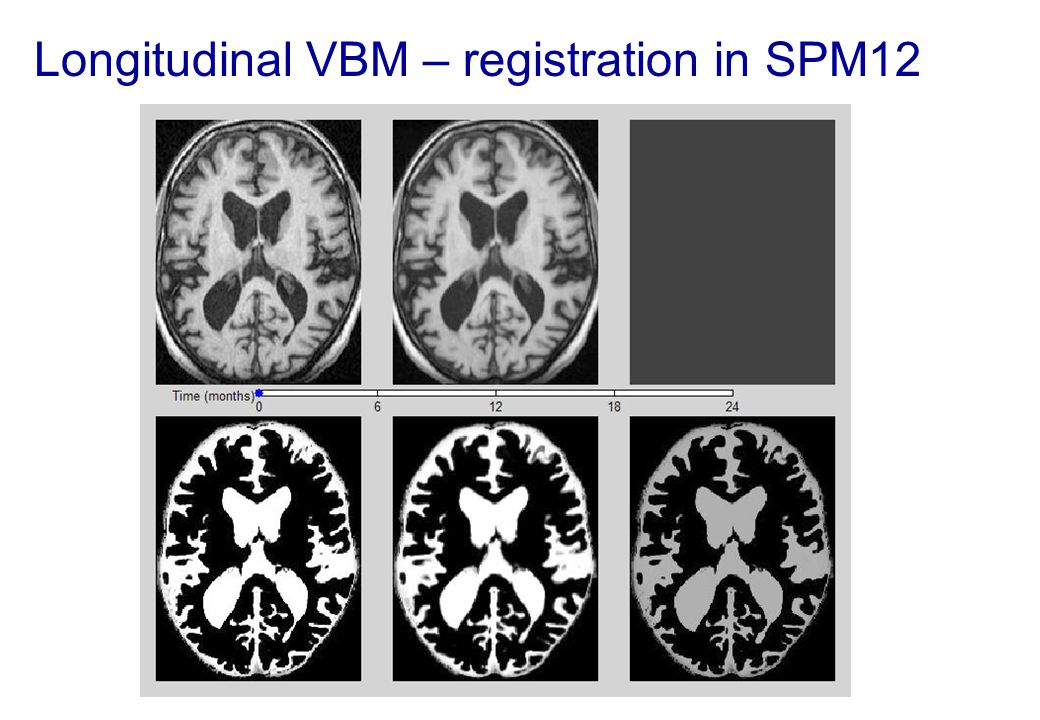 Longitudinal VBM – registration in SPM12