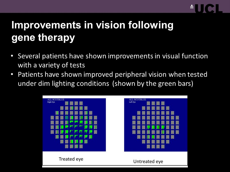 Improvements in vision following gene therapy