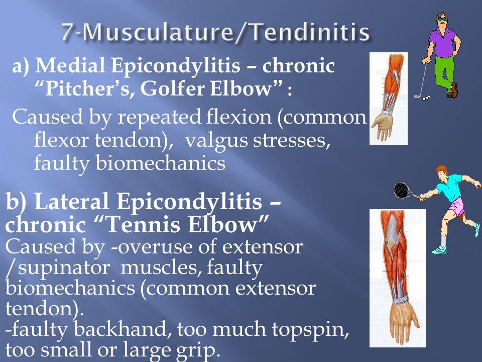 7-Musculature/Tendinitis