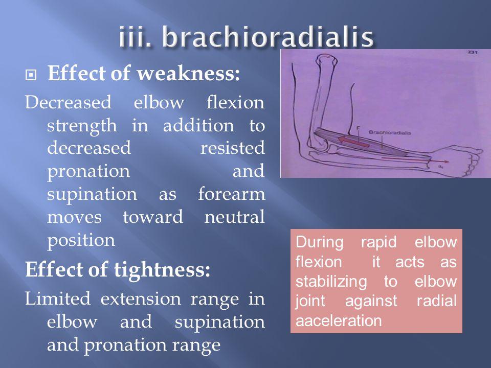 iii. brachioradialis Effect of weakness: Effect of tightness: