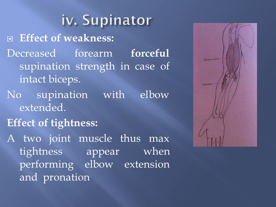 iv. Supinator Effect of weakness: