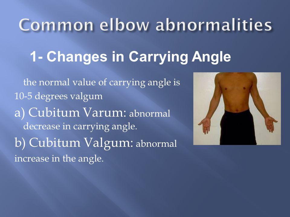 Common elbow abnormalities