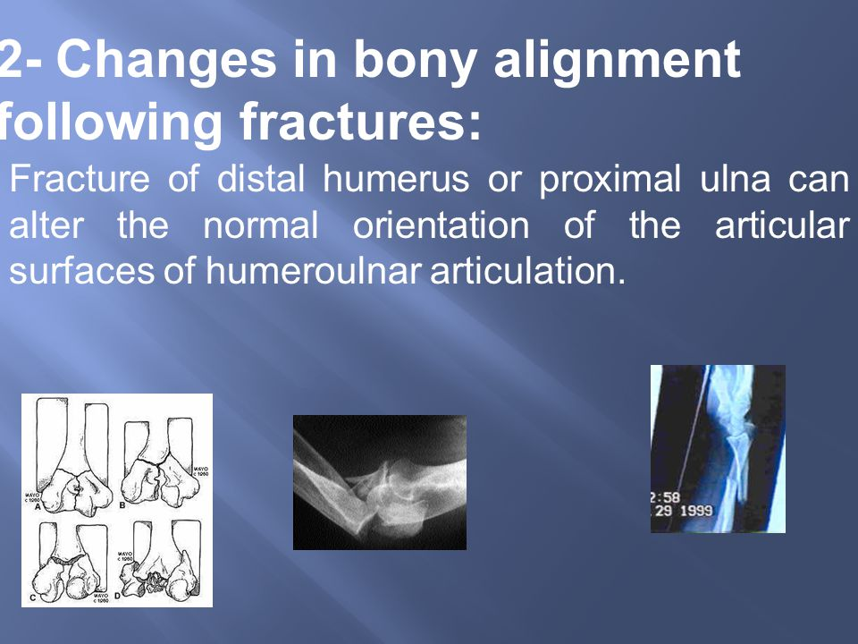 2- Changes in bony alignment following fractures: