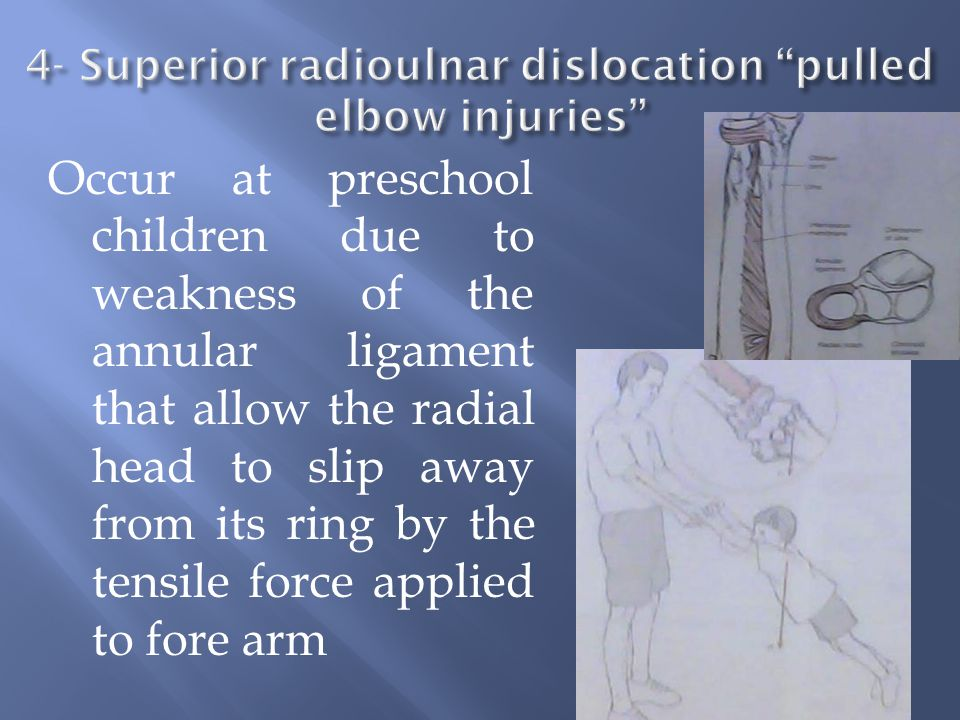 4- Superior radioulnar dislocation pulled elbow injuries
