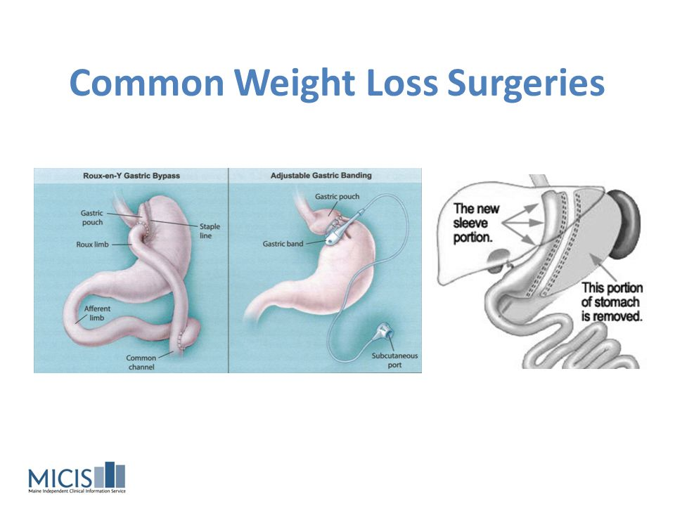 Common Weight Loss Surgeries