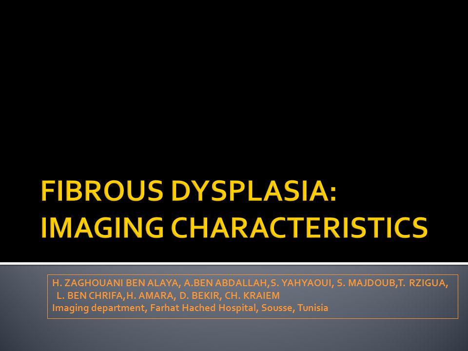FIBROUS DYSPLASIA: IMAGING CHARACTERISTICS