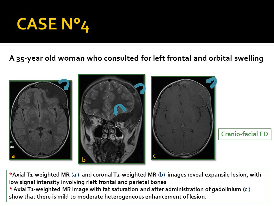 CASE N°4 A 35-year old woman who consulted for left frontal and orbital swelling. Cranio-facial FD.