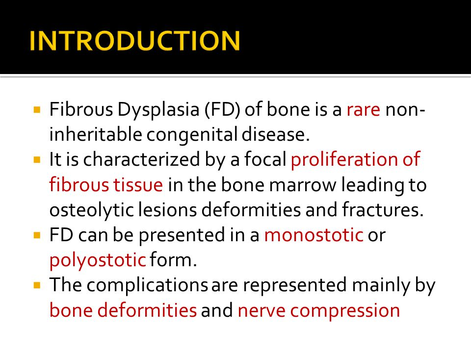 INTRODUCTION Fibrous Dysplasia (FD) of bone is a rare non-inheritable congenital disease.