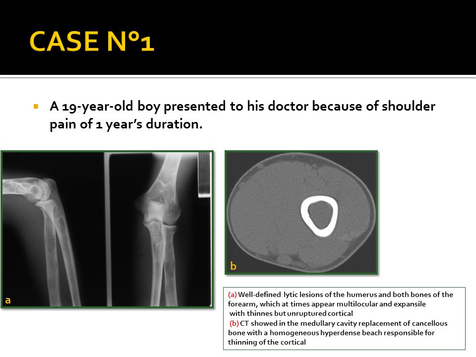 CASE N°1 A 19-year-old boy presented to his doctor because of shoulder pain of 1 year's duration. b.