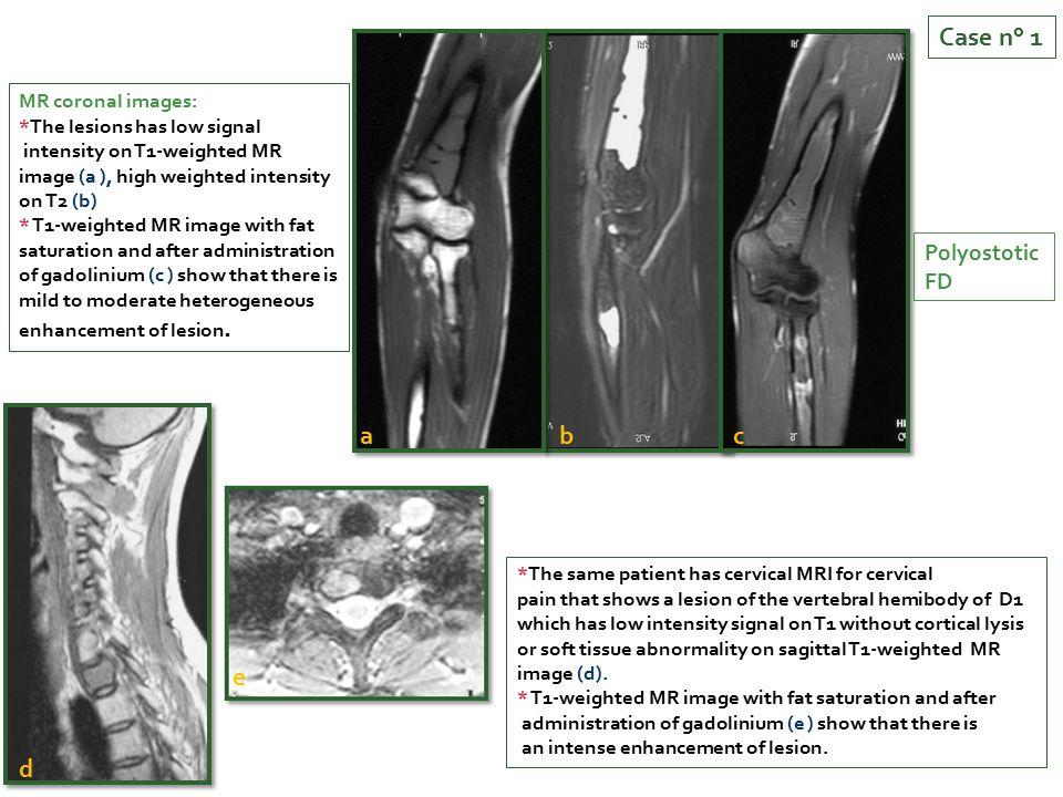 Case n° 1 a b c e d Polyostotic FD MR coronal images: