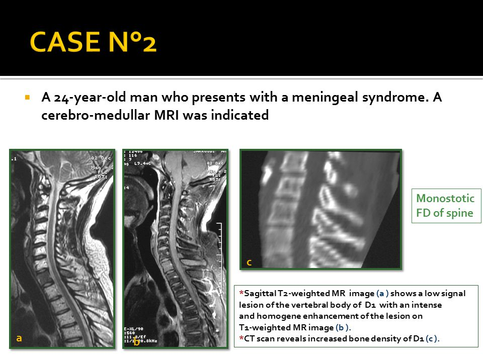 CASE N°2 A 24-year-old man who presents with a meningeal syndrome. A cerebro-medullar MRI was indicated.