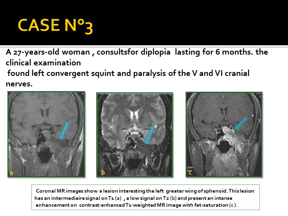 CASE N°3 A 27-years-old woman , consultsfor diplopia lasting for 6 months. the clinical examination.