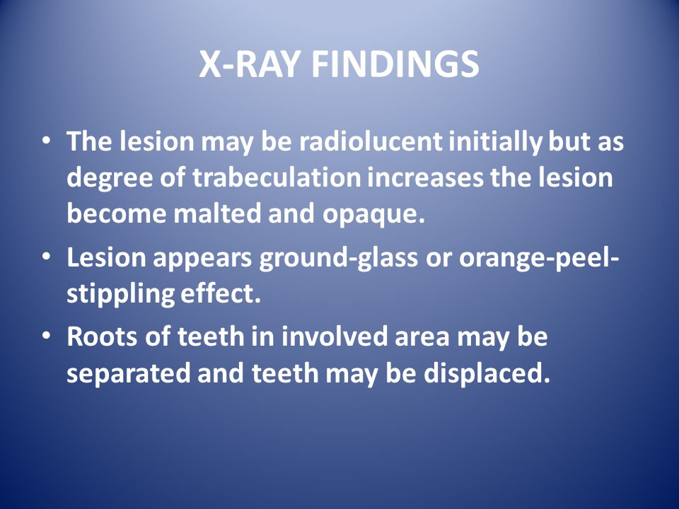 X-RAY FINDINGS The lesion may be radiolucent initially but as degree of trabeculation increases the lesion become malted and opaque.