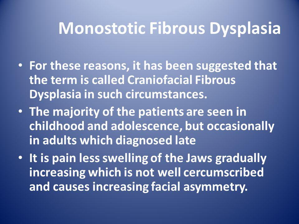 Monostotic Fibrous Dysplasia