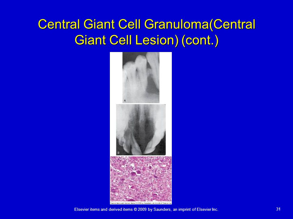 Central Giant Cell Granuloma(Central Giant Cell Lesion) (cont.)
