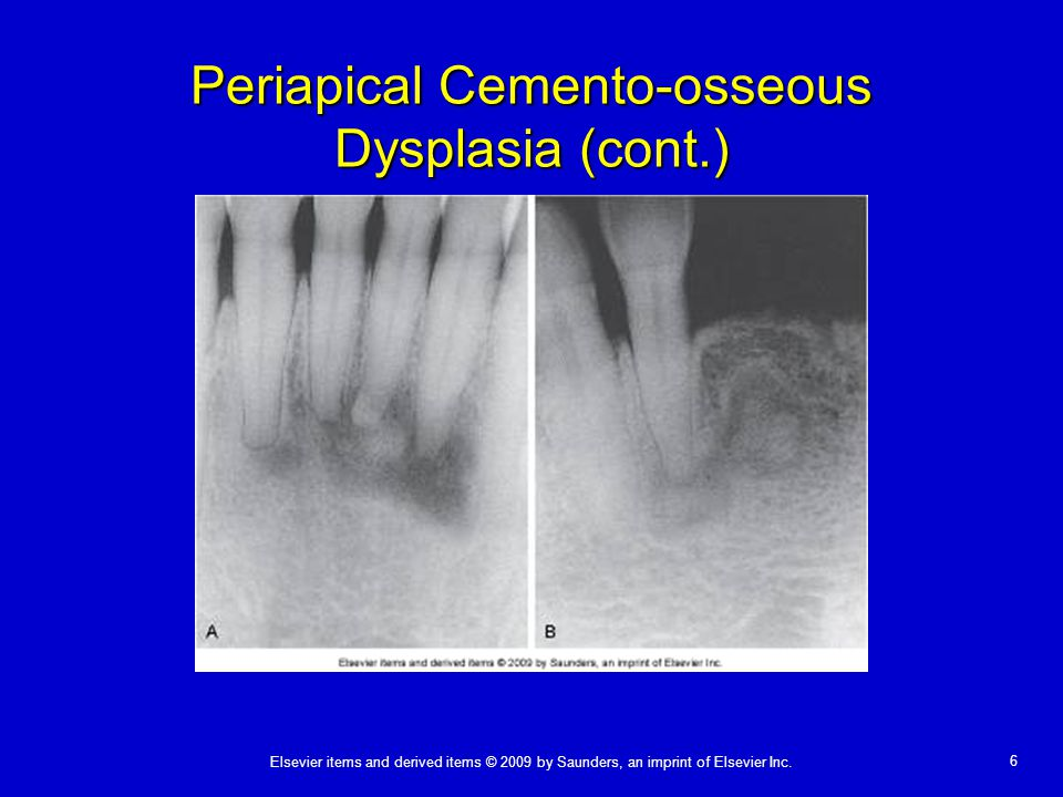 Periapical Cemento-osseous Dysplasia (cont.)