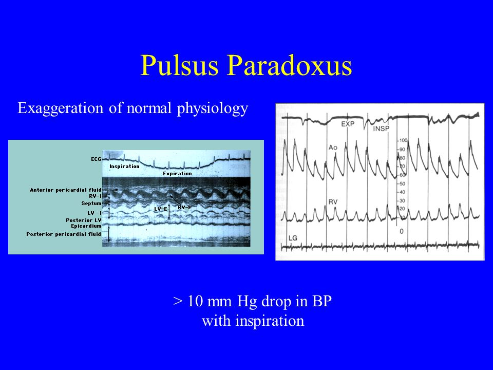 Pulsus Paradoxus Exaggeration of normal physiology