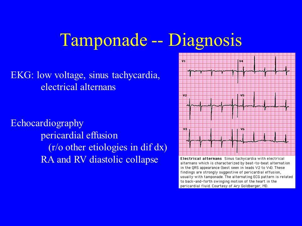 Tamponade -- Diagnosis