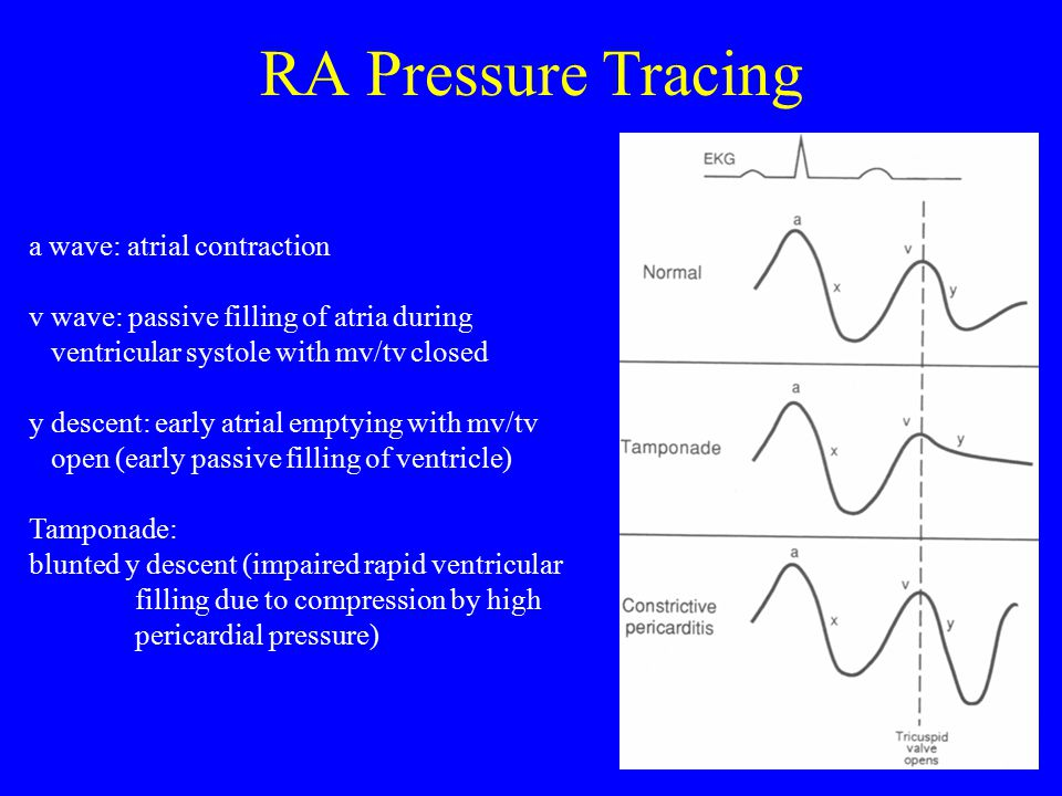 RA Pressure Tracing a wave: atrial contraction