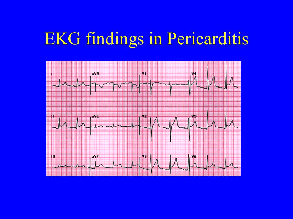EKG findings in Pericarditis