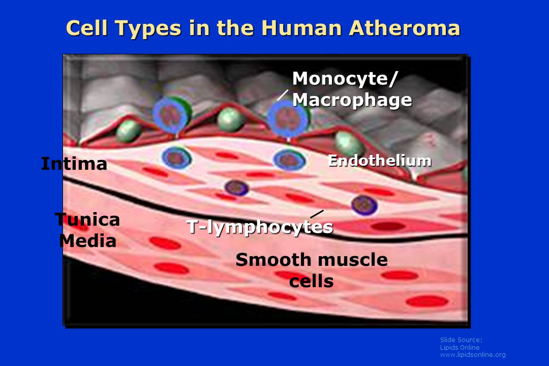 Cell Types in the Human Atheroma