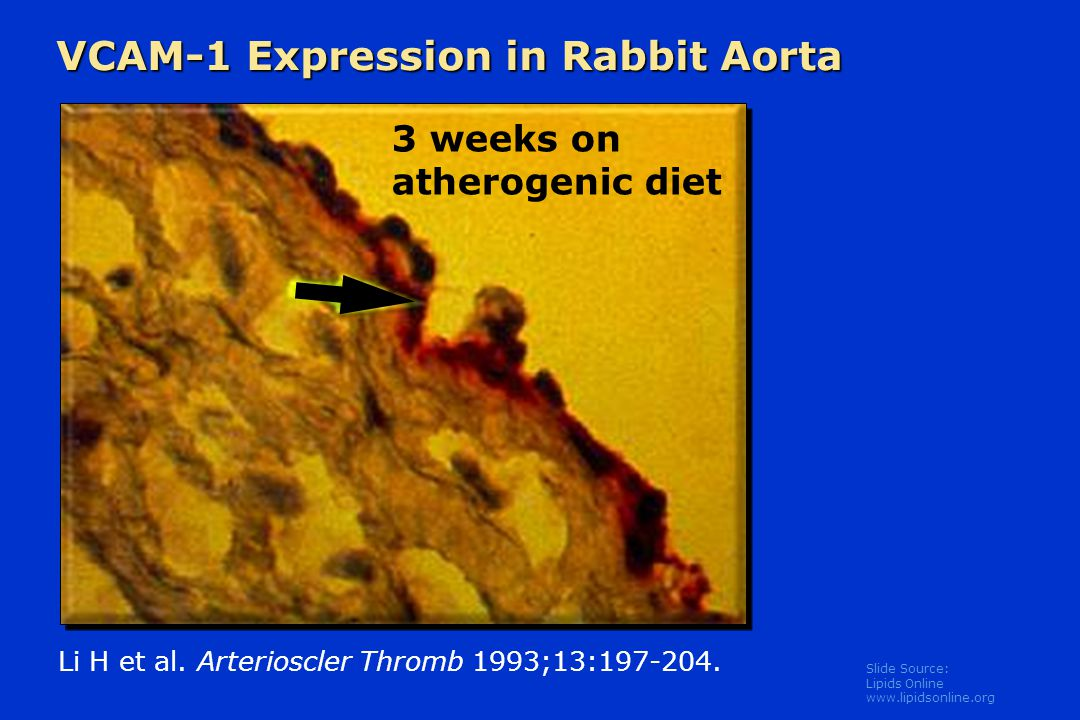 VCAM-1 Expression in Rabbit Aorta