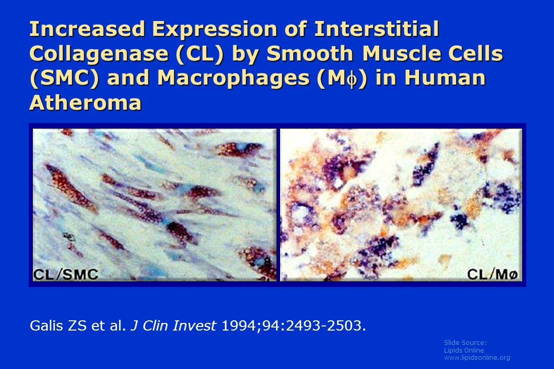Increased Expression of Interstitial Collagenase (CL) by Smooth Muscle Cells (SMC) and Macrophages (M) in Human Atheroma