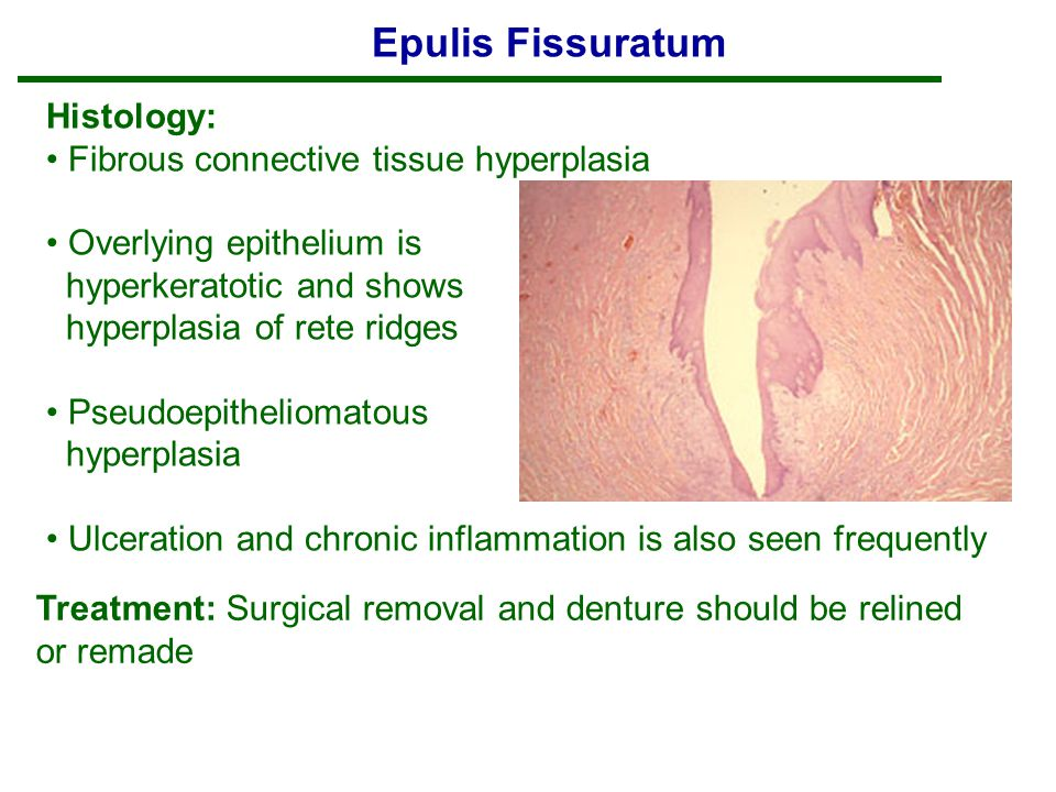 Soft Tissue Tumors. - ppt video online download
