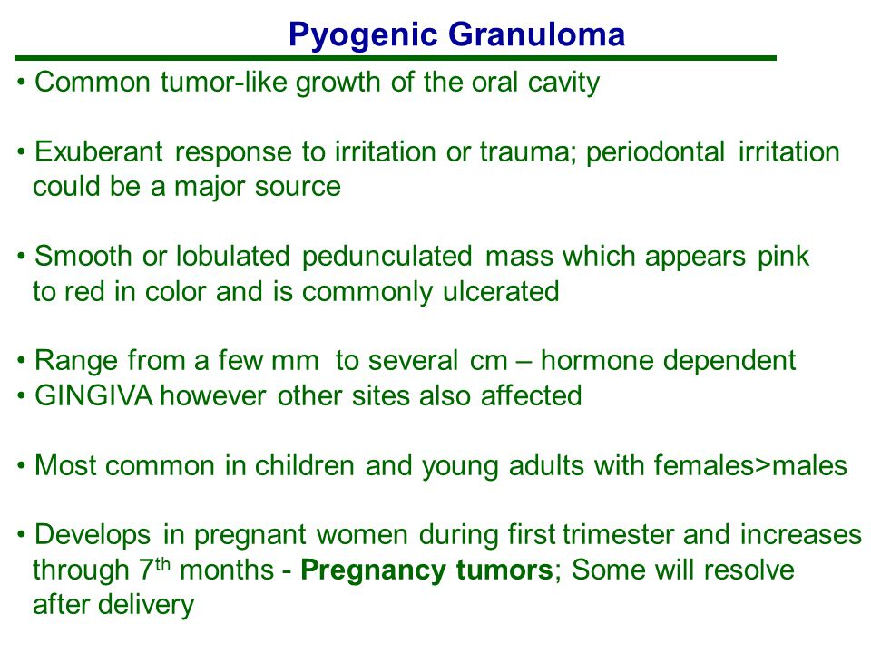 Pyogenic Granuloma Common tumor-like growth of the oral cavity